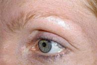 Korrigering av form på ögonbryn - före