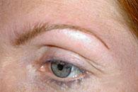 Korrigering av form på ögonbryn med - efter