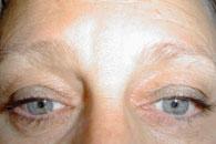 Ifyllnad av ljusa ögonbryn - före